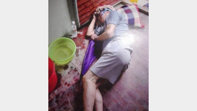 A villager is beaten, causing bleeding on the head